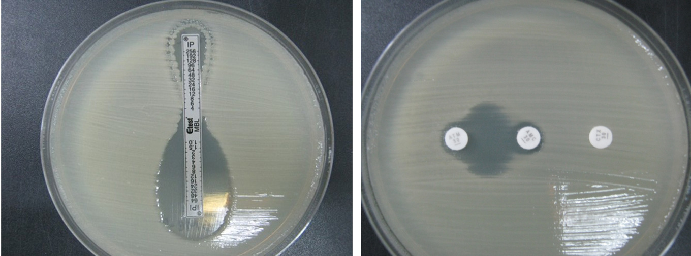 chloroquine resistant bacteria dissertation University of lagos school of postgraduate studies phd thesis and dissertation abstract studies on chloroquine resistant a study of nosocomial bacteria.